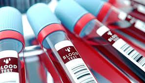 Un análisis de sangre permitirá detectar 50 tipos de cáncer