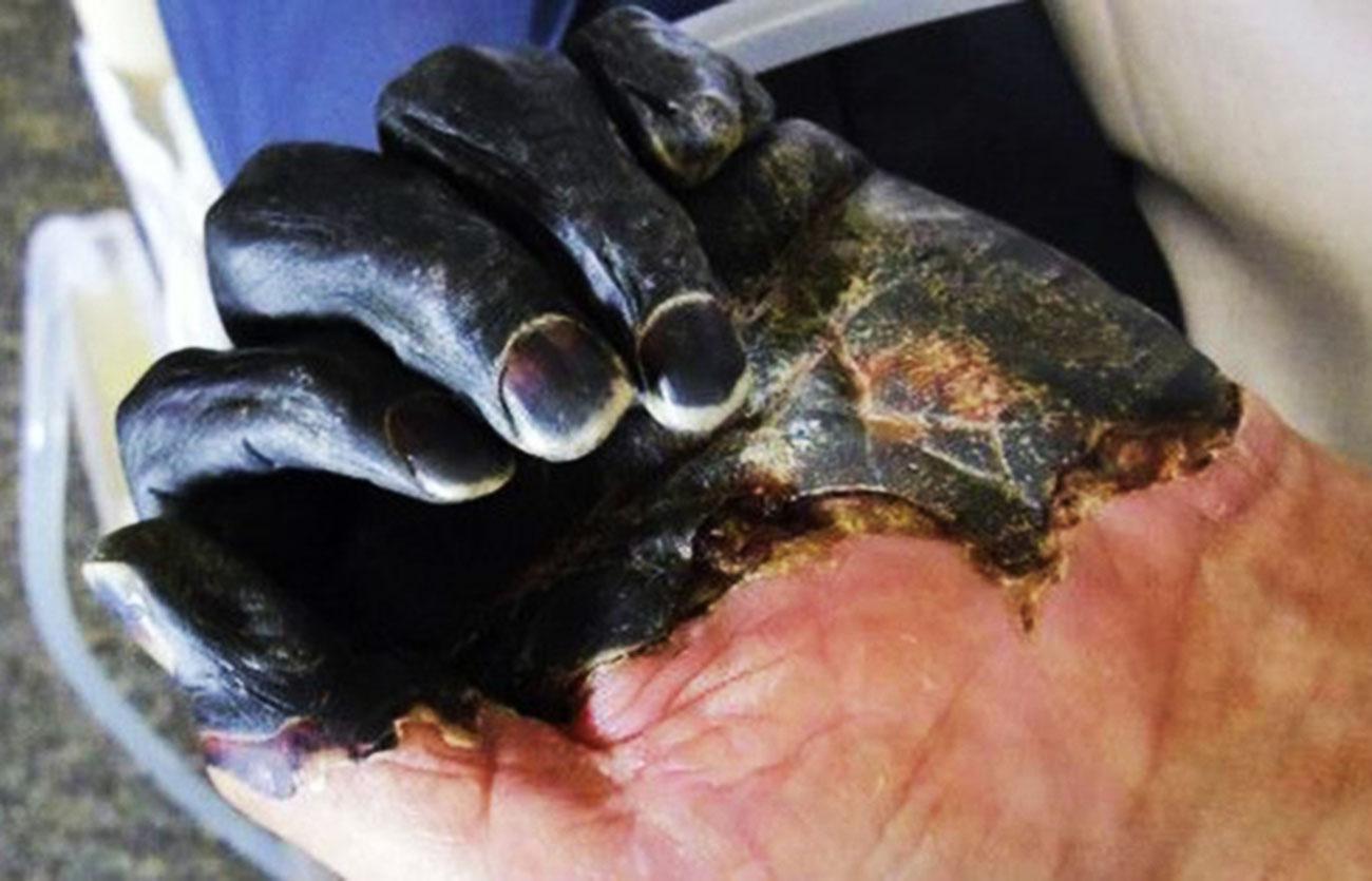 Reportan brote de 'peste negra' en Mongolia; qué es y cuáles son los síntomas