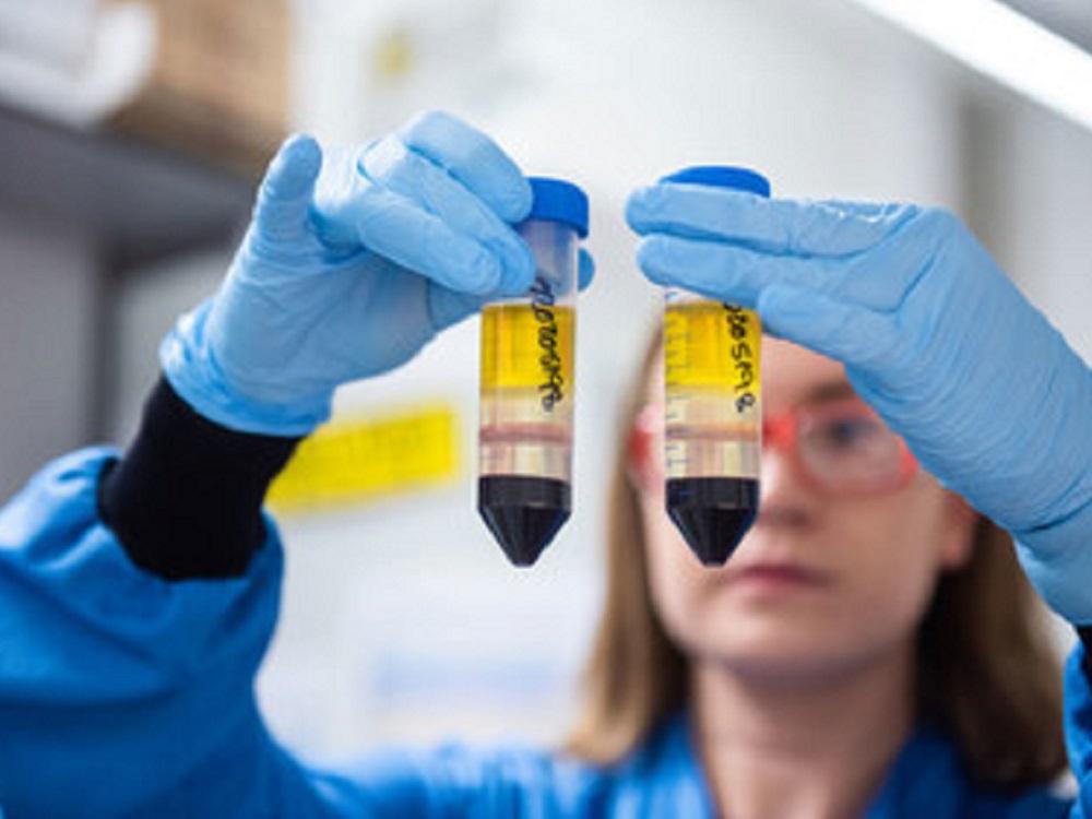 Hay una esperanza real de poner fin a la pandemia con avances en vacunas COVID-19: OMS